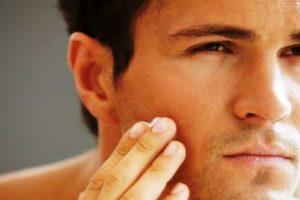 Mengatasi Kulit Kering Akibat Pemakaian Minoxidil